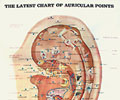 The Latest Chart of Auricular Points